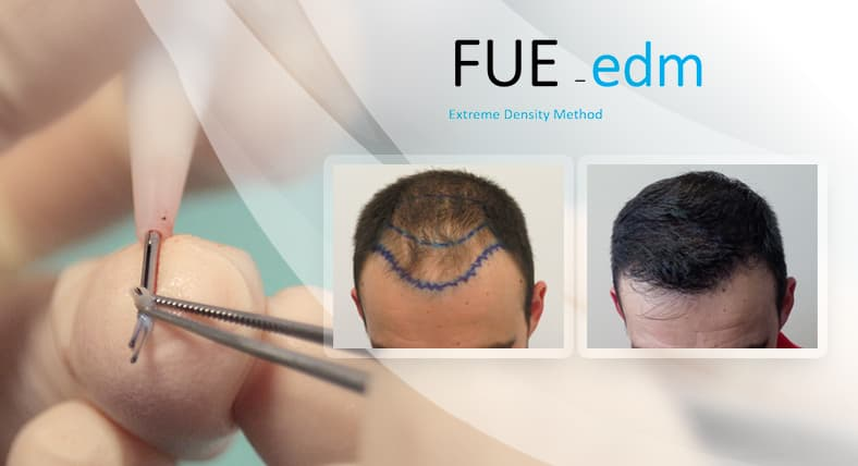 FUE MICROTRANSPLANT OPTIMIZED DENSITY